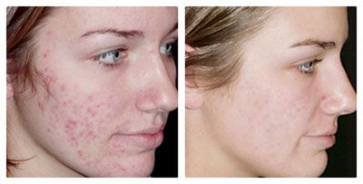 IPL acne before and after