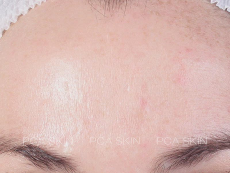 acne after