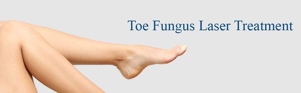 banner-toe-fungus