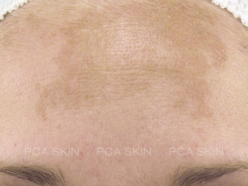 hyperpigmentation before